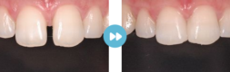 審美歯科の症例