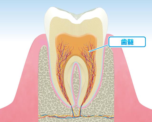 「歯の神経」の画像検索結果