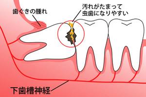 抜歯 歯 他 が 親知らず 後 痛い の